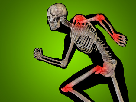 osteoporosis: Conceptual human body anatomy articular pain on green background