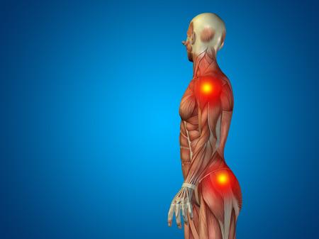 osteoporosis: Conceptual anatomía del cuerpo humano del dolor articular en el fondo azul