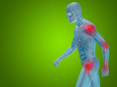 shoulder inflammation: Conceptual human body anatomy articular pain on green background