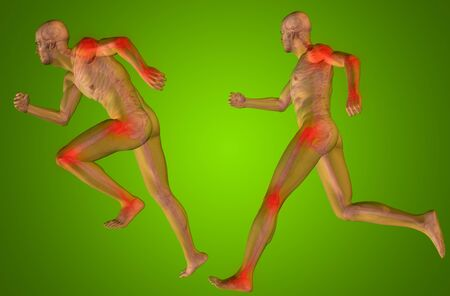 rheumatism: Concept or conceptual man anatomy with pain or ache on green background