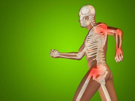 elbows: Conceptual human body anatomy articular pain on green background
