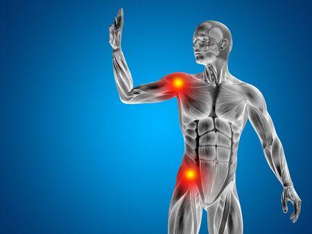 Conceptual anatomía cuerpo humano dolor articular en el fondo azul Foto de archivo