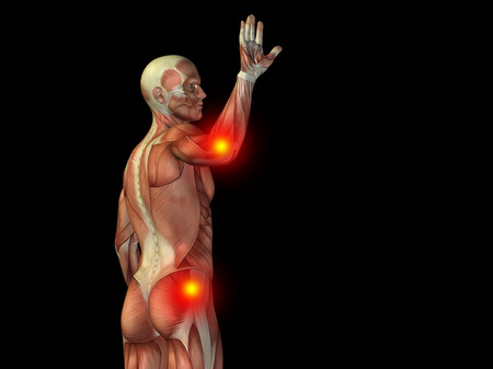 shoulder inflammation: Conceptual human body anatomy articular pain on isolated on black background