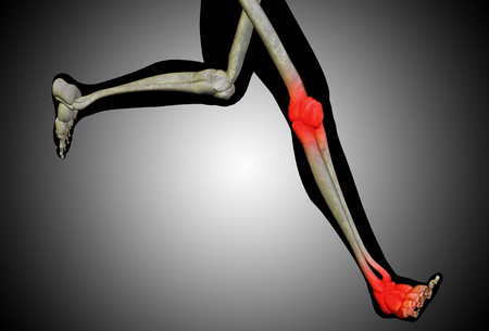 knee cap: Conceptual human body anatomy articular pain on gray background Stock Photo