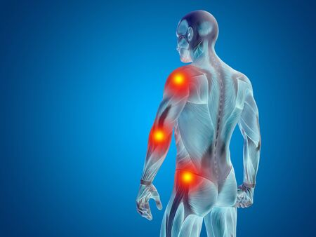 shoulder inflammation: Conceptual human body anatomy articular pain on blue background