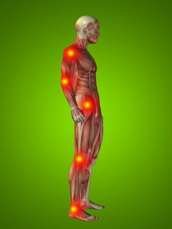 Conceptual 3D human man anatomy joint pain body on green background