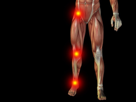 Conceptual human body anatomy articular pain on isolated on black background