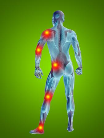 概念 3 D 人間解剖学関節痛体に緑の背景