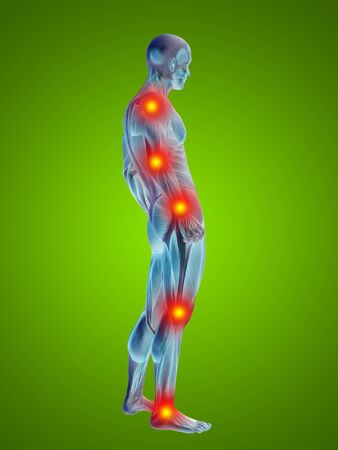 health and fitness: Conceptual 3D human man anatomy joint pain body on green background