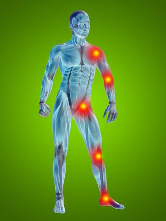 Conceptuele 3D menselijke man anatomie gewrichtspijn lichaam op groene achtergrond Stockfoto - 79140580