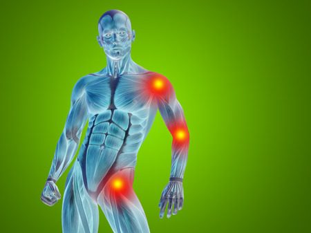 Conceptual human body anatomy articular pain on green background