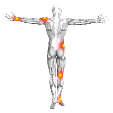 赤と黄色のホット スポットの炎症や医療療法やスポーツ概念の関節の関節痛と概念的な筋の解剖学.3 D イラストレーションの人関節炎や骨骨粗鬆症