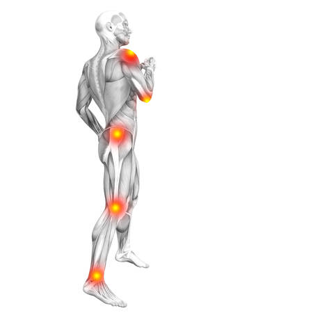 Conceptual human muscle anatomy with red and yellow hot spot inflammation or articular joint pain for health care therapy or sport concepts. 3D illustration man arthritis or bone osteoporosis disease