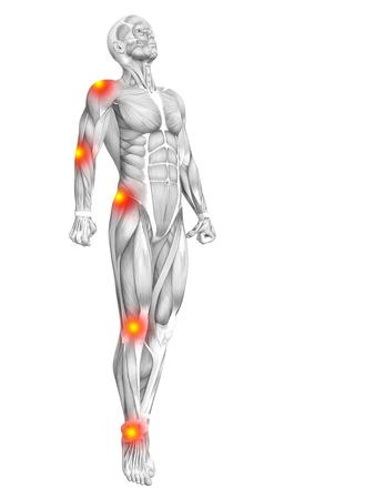 Anatomie anatomique conceptuelle de l'homme avec une inflammation rouge ou jaune du point chaud ou une douleur articulaire articulaire pour la thérapie de soins de santé ou des concepts sportifs. Illustration 3D Art arthrite ou maladie de l'ostéoporose osseuse Banque d'images - 85113323
