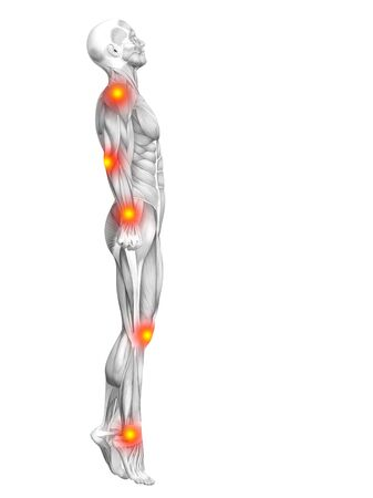 pain: Conceptual human muscle anatomy with red and yellow hot spot inflammation or articular joint pain for health care therapy or sport concepts. 3D illustration man arthritis or bone osteoporosis disease