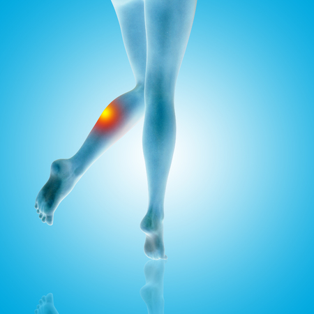 Conceptual beautiful woman or girl legs and feet with a hurt calf pain or ache closeup, 3D illustration of human slim fit body medical or health care concept, painful sport injury on blue background