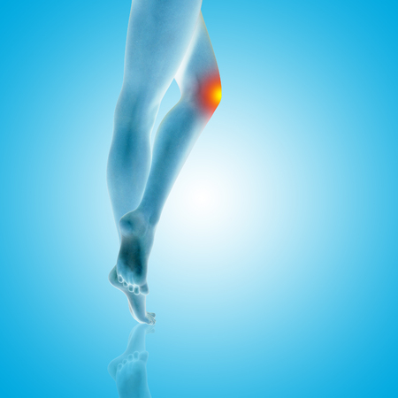 Conceptual beautiful woman or girl legs and feet with a hurt knee pain or ache closeup, 3D illustration of human slim fit body medical or health care concept, painful sport injury on blue background