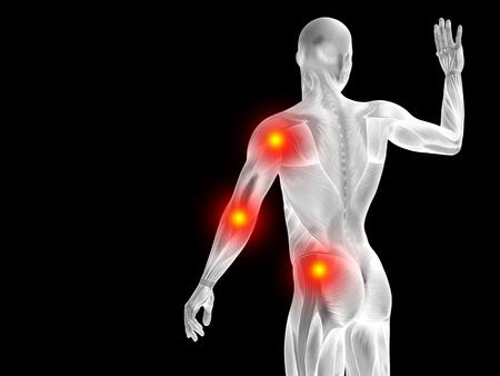Conceptual anatomía cuerpo humano articular dolor en aislados sobre fondo negro