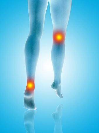 Conceptual beautiful woman or girl legs and feet with a hurt knee and ankle pain or ache. 3D illustration of human slim fit body medical health care concept, painful sport injury on blue background Stock Photo
