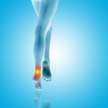 Conceptual beautiful woman or girl legs and feet with a hurt ankle pain or ache closeup, 3D illustration of human slim fit body medical or health care concept, painful sport injury on blue background Stock Photo