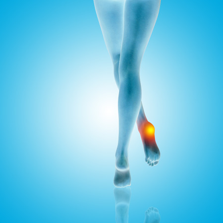 Conceptual beautiful woman or girl legs and feet with a hurt heel pain or ache closeup, 3D illustration of human slim fit body medical or health care concept, painful shoe injury on blue background Stock Photo