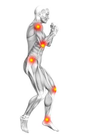건강 관리 치료 또는 스포츠 개념에 대 한 붉은 색과 노란색 핫 스폿 염증이나 관절 통증과 개념적 인간의 근육 해부학. 3D 그림 남자 관절염 또는 뼈 골
