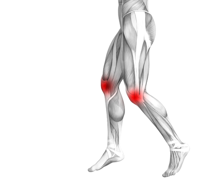 Conceptual knee human anatomy with red hot spot inflammation or articular joint pain for leg health care therapy or sport muscle concepts. 3D illustration man arthritis or bone osteoporosis disease Stock Photo