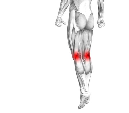 Conceptual knee human anatomy with red hot spot inflammation or articular joint pain for leg health care therapy or sport muscle concepts. 3D illustration man arthritis or bone osteoporosis disease 写真素材