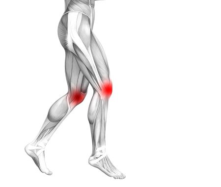 Conceptual knee human anatomy with red hot spot inflammation or articular joint pain for leg health care therapy or sport muscle concepts. 3D illustration man arthritis or bone osteoporosis disease Фото со стока