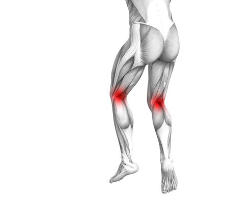 Conceptual knee human anatomy with red hot spot inflammation or articular joint pain for leg health care therapy or sport muscle concepts. 3D illustration man arthritis or bone osteoporosis disease Imagens