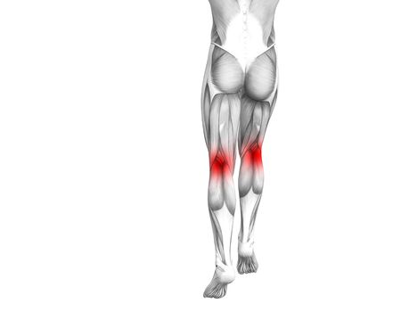 Conceptual knee human anatomy with red hot spot inflammation or articular joint pain for leg health care therapy or sport muscle concepts. 3D illustration man arthritis or bone osteoporosis disease 版權商用圖片