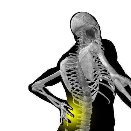 Concept or conceptual 3d human male or man anatomy isolated on black background as metaphor to pain,back,body,spine,backache,medical,injury,medicine,health,hurt,painful,spinal  therapy Standard-Bild