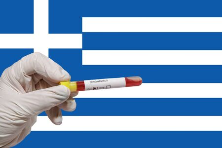 Greece Coronavirus COVID-19 world outbreak concept. Chemist with protective gloves holds vacutainer blood tube with 2019-nCoV virus positive sample, before Greek flag. Stockfoto