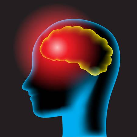 concussion: Headache