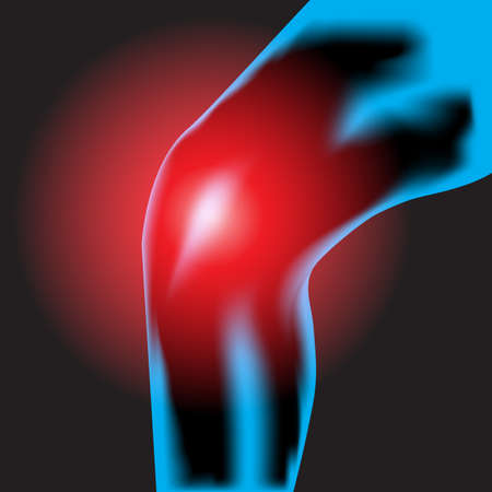 lower limb: Knee pain with black background Illustration