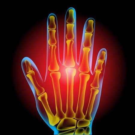 wrist joint: Hand pain Illustration