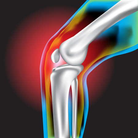 lower limb: Knee pain ,X-Ray ,Knee Scan