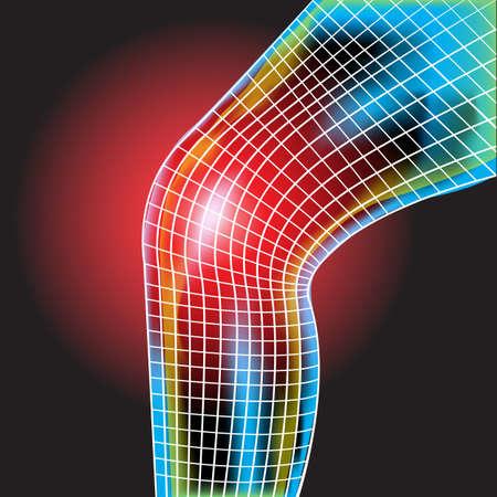 Knee pain ,X-Ray ,Knee Scan