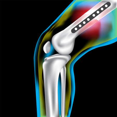 lower limb: Bone knee Welt steel