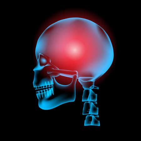 Hersenen met pijn