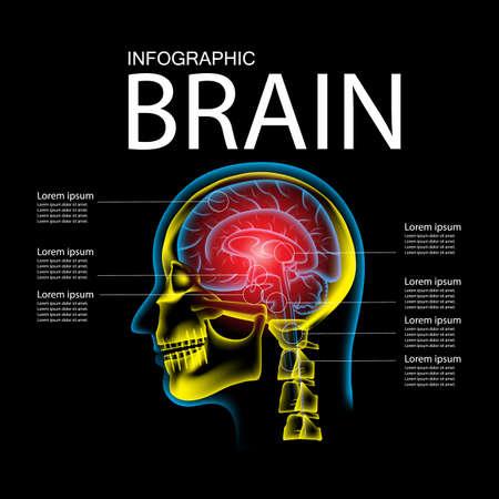 Human Brain in pain, x ray