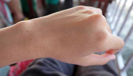 meagre: thin lady wrist with no watch