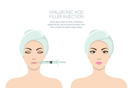 Beauty, cosmetology, anti-aging concept. Before and after vector illustration of beautiful woman having hyaluronic acid filler lips injection. Female rejuvenating injection against the wrinkles.