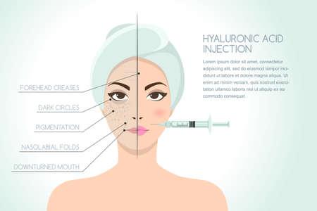 Voor en na vectorillustratie van vrouw met hyaluronzuur gezicht injectie. Vector infographics ontwerpsjabloon. Schoonheid, kosmetiek, anti-verouderingsconcept. Stockfoto - 88027065