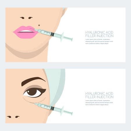 Injection faciale d'acide hyaluronique, modèle de conception de bannière de vecteur. Injection de comblement périorbitaire dans les lèvres et les yeux. Beauté, cosmétologie, concept anti-âge. Mésothérapie rajeunissante féminine. Vecteurs