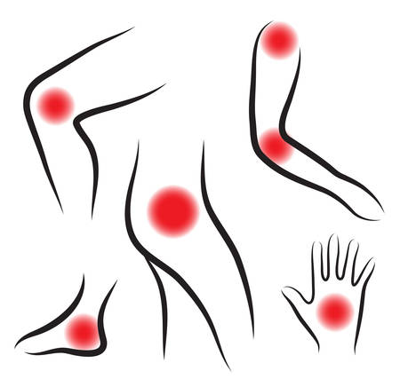 Set of body joints, joint pain. Vector illustration Illustration