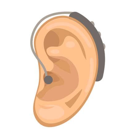 보청기 아이콘 플랫 스타일입니다. 흰색 배경에 귀입니다. 의학 개념입니다. 벡터 일러스트 레이 션