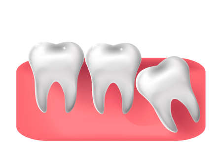 Wisdom tooth cut through, 3d realistic style. Dentistry, wisdom teeth extraction concept. Vector illustration.