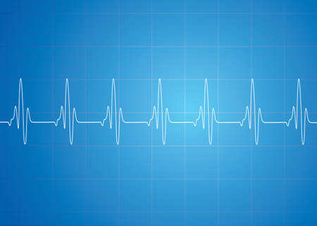Heart Beat On Blue Background Çizim
