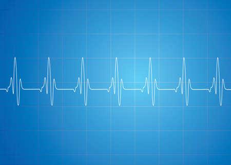 Heart Beat On Blue Background Illustration